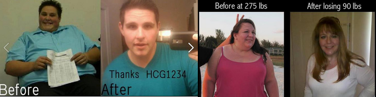 hCG diet before and after pictures